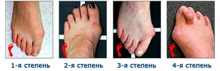 Какой врач лечит деформацию в виде косточки на пальце ноги