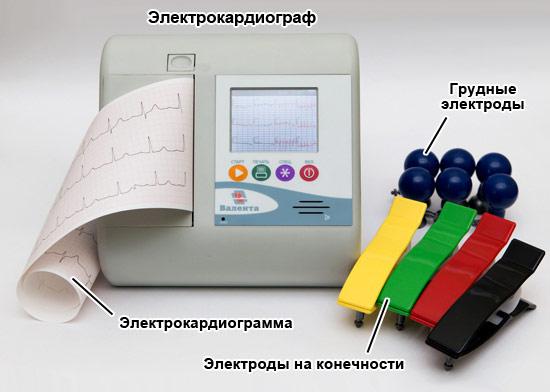 Отклонения в кардиограмме сердца