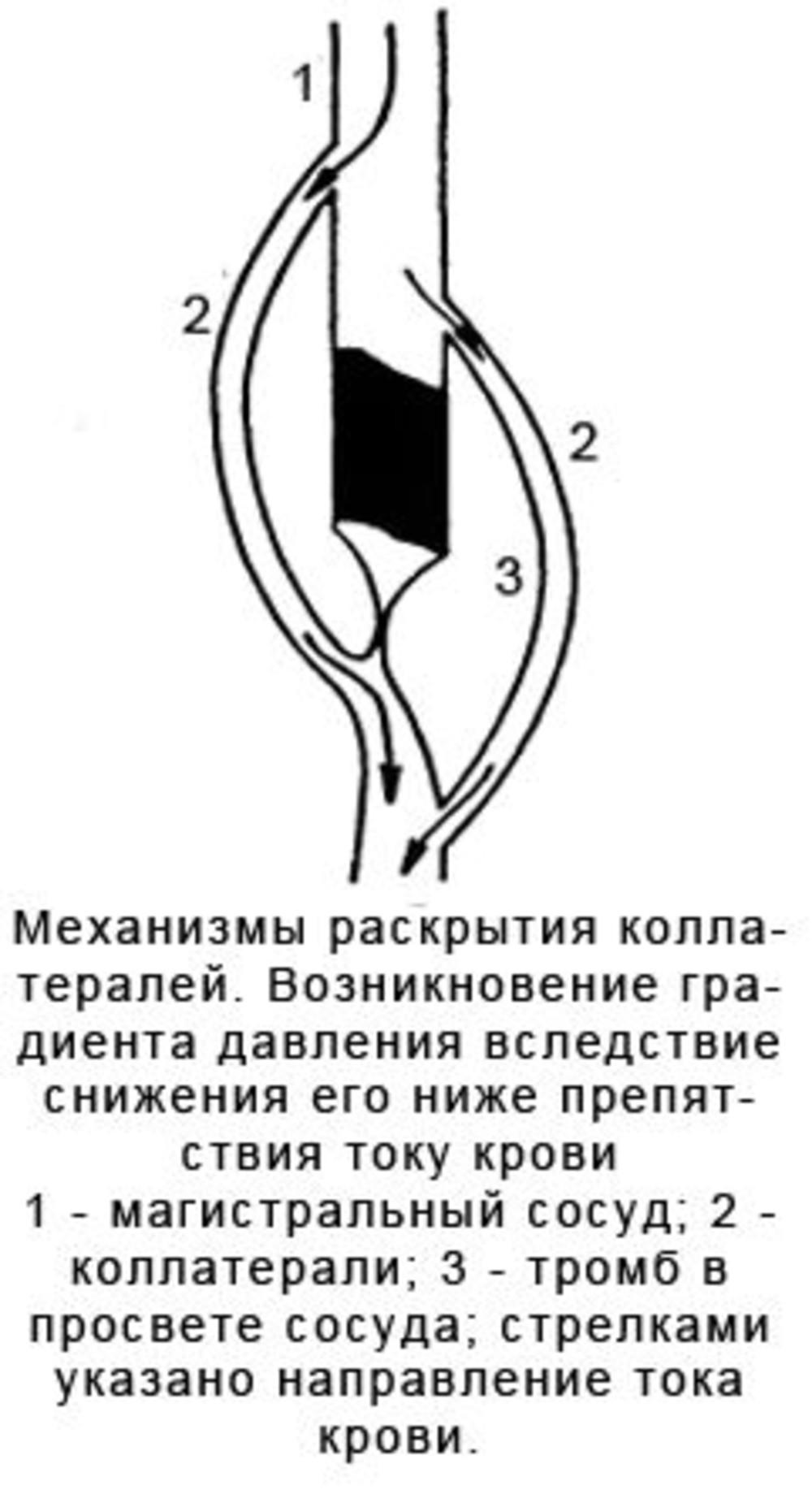 Задняя трифуркация левой внутренней сонной артерии